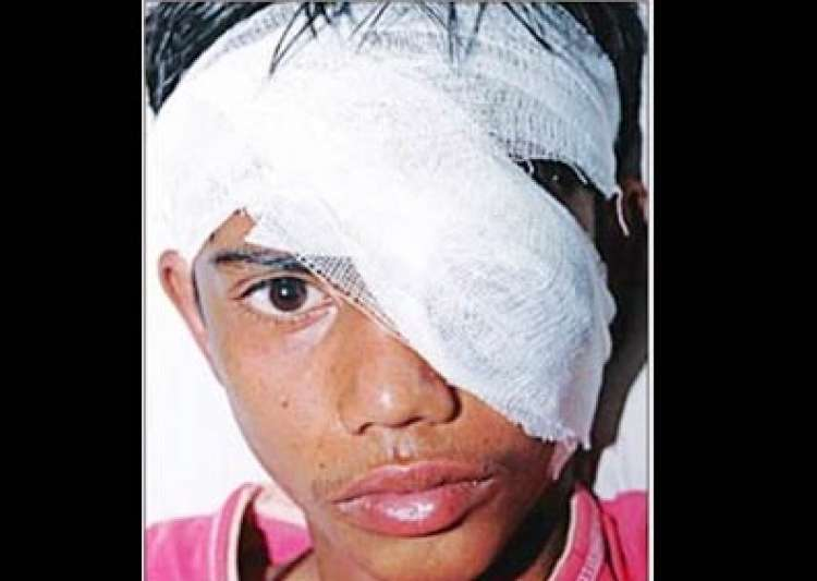 student loses eye as rss school teacher beats him up- India Tv