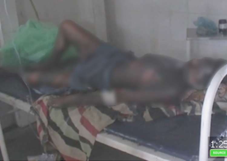 tribal youth set on fire in mp- India Tv